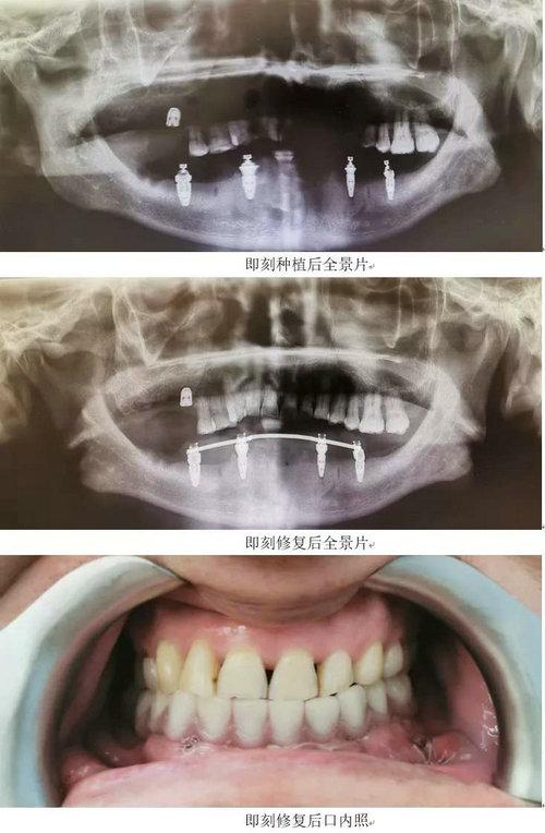 数字化助力精准种植 让种牙精准舒适2.jpg