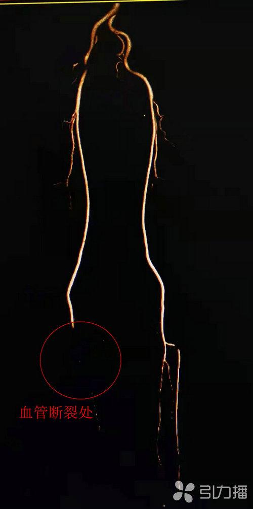 苏报集团(引力播):中年男子右下肢面临截肢风险 医生用自体移植术重建血管通路