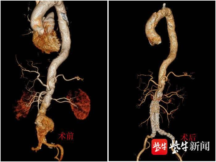 扬子晚报(紫牛新闻):中年男子突发腰痛险丢性命 医生建议出现疼痛不要强忍